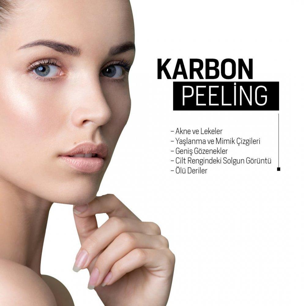 Lazer Peeling: Lazerle Peeling Uygulaması